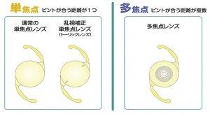 多焦点眼内レンズの特徴